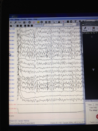 My Brain waves.